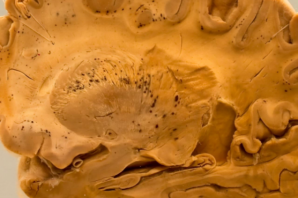 The brain in falciparum malaria