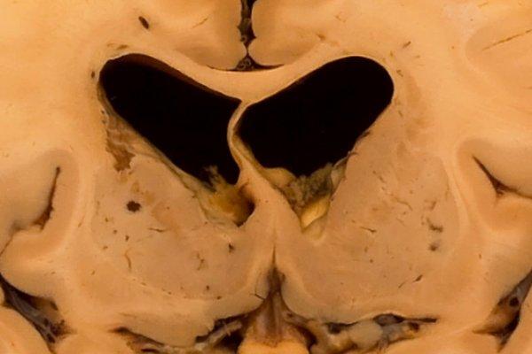 Cerebral atherosclerosis