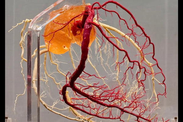 Normal coronary arteries