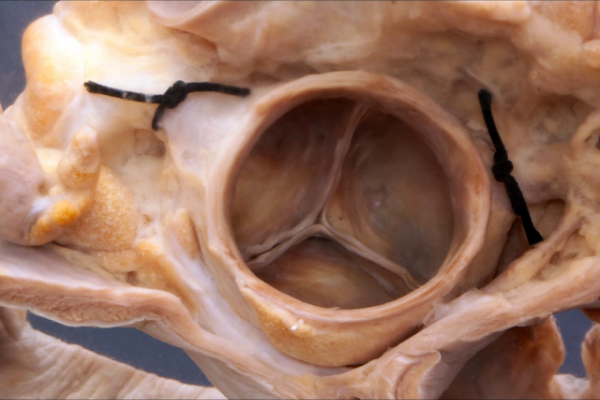 Normal aortic valve from above