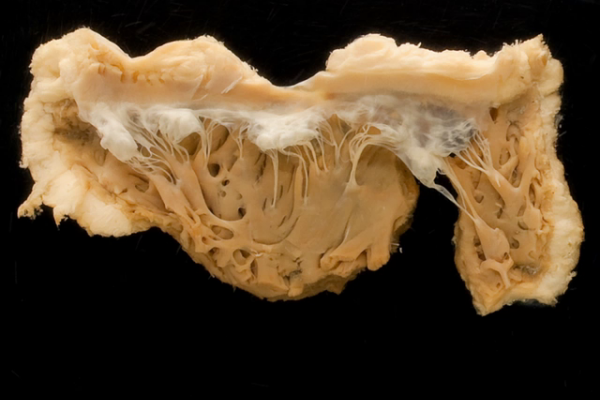 Normal Aortic Valves