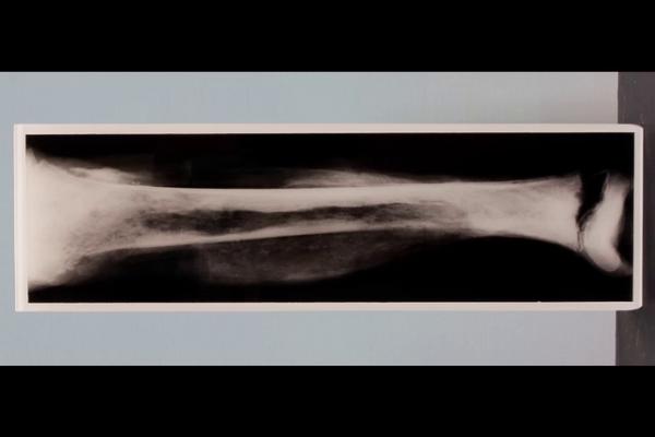 Acute staphylococcal osteomyelitis