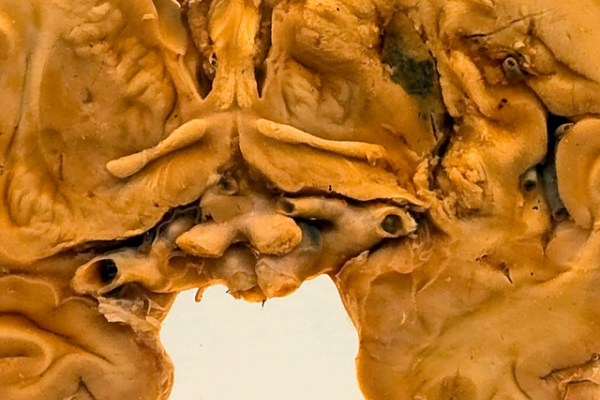 Haemorrhagic infarct of the basal ganglia