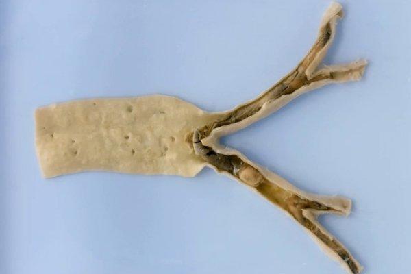 Saddle embolus at the aortic bifurcation