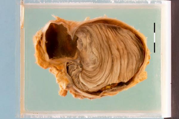 False aneurysm of the tibial artery