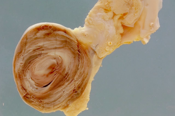 False aneurysm of the external iliac artery