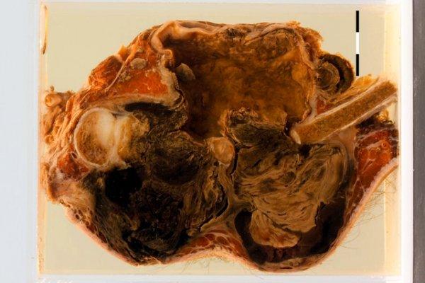 Ruptured syphilitic aneurysm