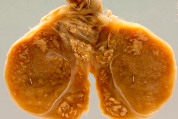 Tuberculosis of the testis-epididymis