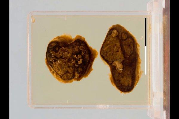 Tuberculous lymphadenitis