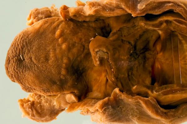 Erythema nodosum leprosum in the larynx