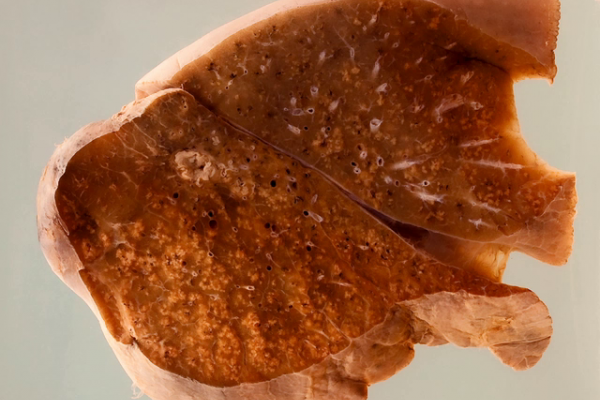 Lung showing miliary tuberculosis