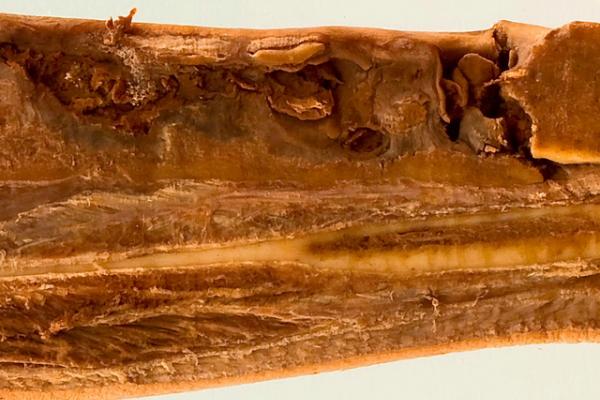 Chronic osteomyelitis of the tibia