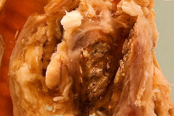 Carinal lymph node (tuberculosis)