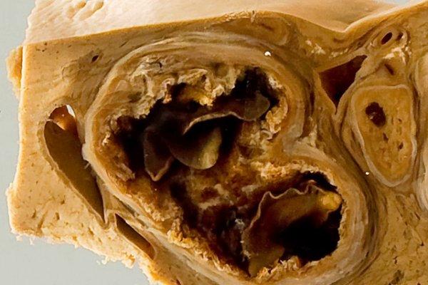 Sheep liver with fascioliasis