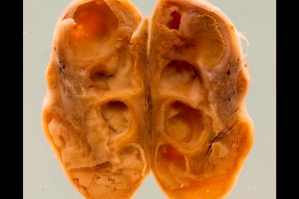 Gonococcal salpingo-oophoritis
