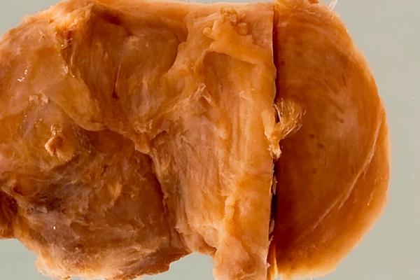 Onchocercal nodule