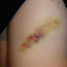 Yellow bruise on leg