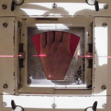 Shows the beam's eye view of the radiotherapy portal.