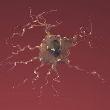 Alzheimer neuron