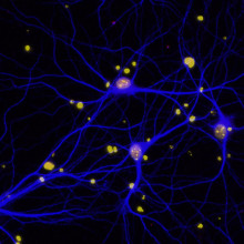 Dementia neuron