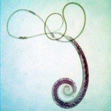 Whipworm