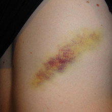 Yellow bruise on leg
