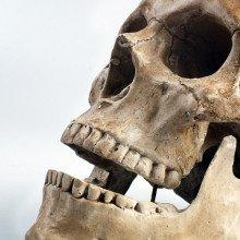 A human skull.
