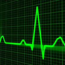 Image of heart rate signal