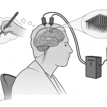 A brain-computer interface detects patterns of nerve activity in the motor cortex and interprets them as handwritten letters