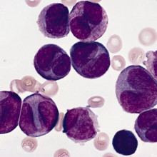 Myeloid Leukaemia cells