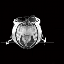 Brain scan of a monkey that could still see but lacked a primary visual cortex
