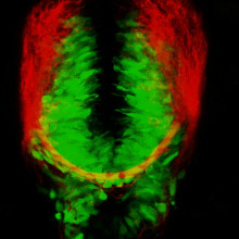 Green inhibitory and red excitatory cells glowing in a live zebrafish brain.