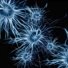 Artist's graphic representing nerve cells (neurones)