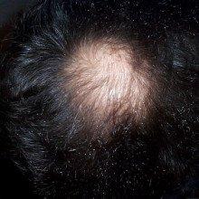 A bald patch