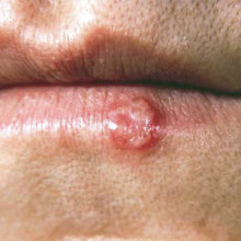 cold sore herpes