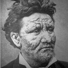 A 24-year-old leper, photographed in Sweden in 1886