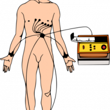 Diagram showing the connection of ECG leads