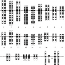 Down's Syndrome Karyotype