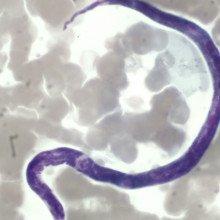 Microfilaria of Loa loa