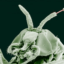 Adult Black Fly (Simulium yahense) with (Onchocerca volvulus) emerging from the insect's antenna. The parasite is responsible for the disease known as River Blindness in Africa. Sample was chemically fixed and critical point dried, then observed...