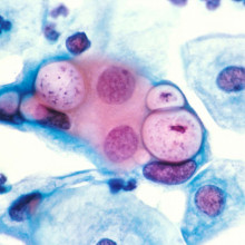 Human cervical pap smear showing clamydia in the vacuoles at 500x and stained with H&E.