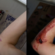 A comparative picture of untreated 7-days-healed road rash in the form of a scar one year later. Fresh wound is on the right, and scar is on the left.