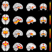 The distribution of brain atrophy in patients with Parkinson's Disease has a network structure.