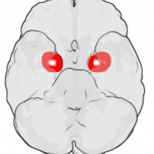 The figure shows the underside (ventral view) of a semi-transparent human brain, with the front of the brain at the top. The red blobs show the approximate location of the en:amygdala in the en:temporal lobes of the human brain. Note: the amygdala is...