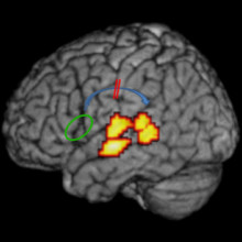 The arcuate fasciculus connecting frontal and temporal language areas of the brain (shown in blue) is impaired in individuals with dyslexia. (Image: Bart Boets, Leuven University).