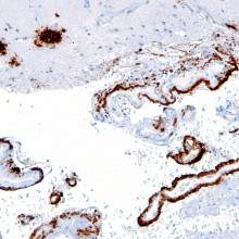 Intermediate magnification micrograph of cerebral amyloid angiopathy with senile plaques in the cerebral cortex consistent of amyloid beta, as may be seen in Alzheimer disease. Amyloid beta immunostain.