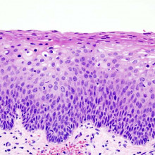 Cervical Intraepithelial Neoplasia CIN2