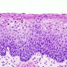 Cervical Intraepithelial Neoplasia CIN2
