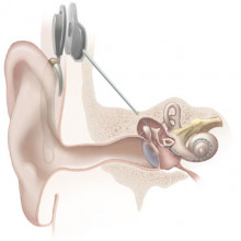Illustration of cochlear implant from the National Institute on Deafness and Other Communication Disorders at the National Institutes of Health.