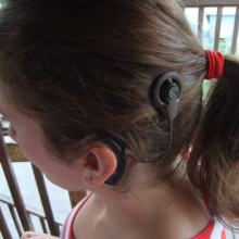 A cochlear implant as worn by the user